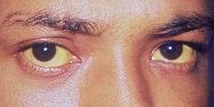 Hep Eyes